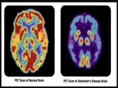 Studien und wissenschaftliche Untersuchungen - Studie: Demenz-Risiko unter LGBTI besonders hoch